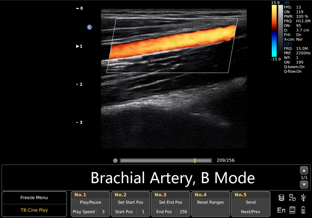 https://aceamino.com/wp-content/uploads/2018/10/Brachial-Artery-Power.jpg