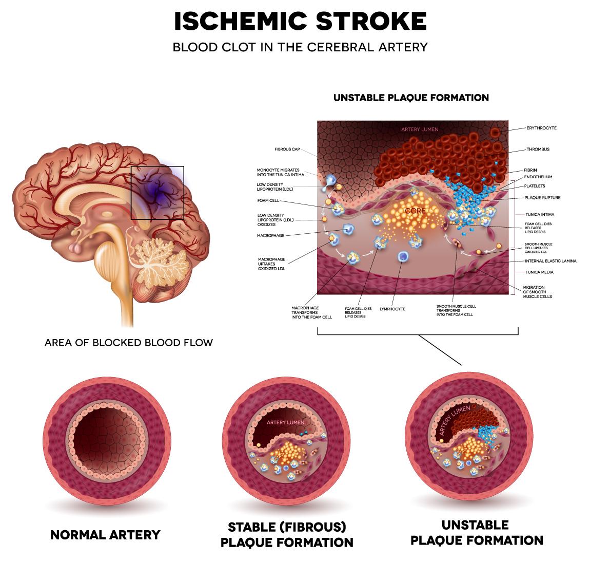 https://aceamino.com/wp-content/uploads/2018/10/ischemic-stroke.jpg